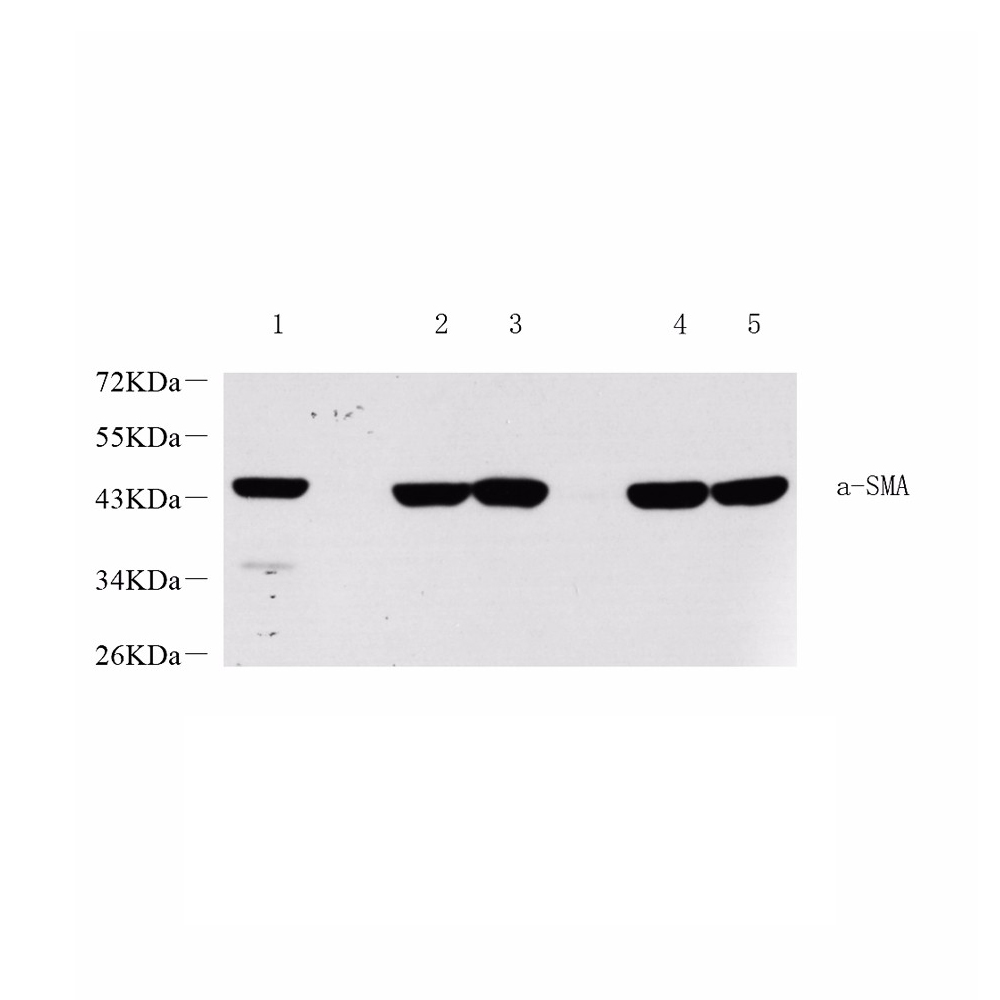 Anti -alpha smooth muscle Actin Rabbit pAb