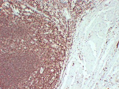 Anti -CD45 Mouse mAb