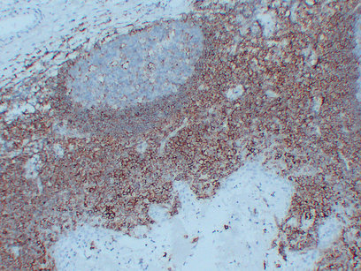 Anti -CD44 Mouse mAb