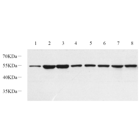 Anti -beta Tubulin Rabbit pAb